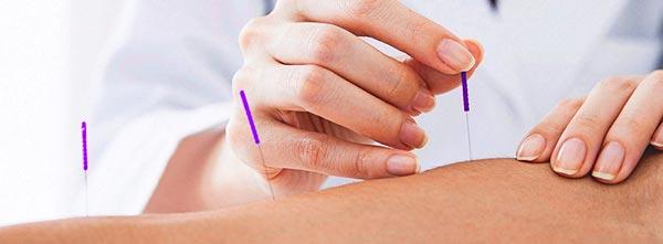 guia-da-alma-guia-terapias-holisticas-qual-terapia-fazer-acupuntura
