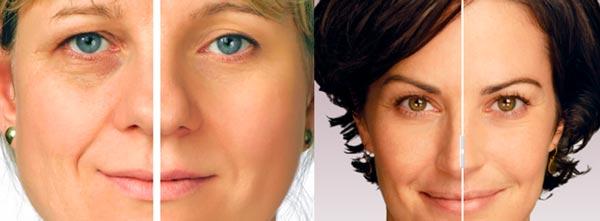 facelift-Rejuvenescimento-Energetico-Facial-Access-Consciousness